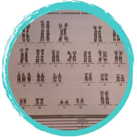 trisomy 13 chromosome analysis