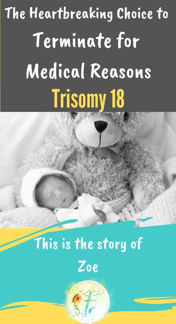 trisomy 18 edwards syndrome tfmr